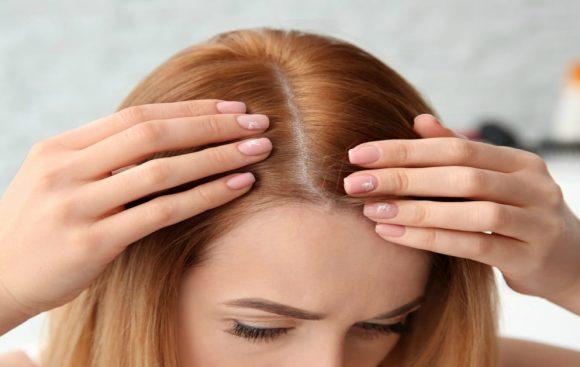 Cómo controlar la caspa y la caída del cabello